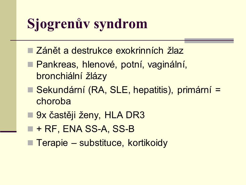 Sjogrenův syndrom Zánět a destrukce exokrinních žlaz