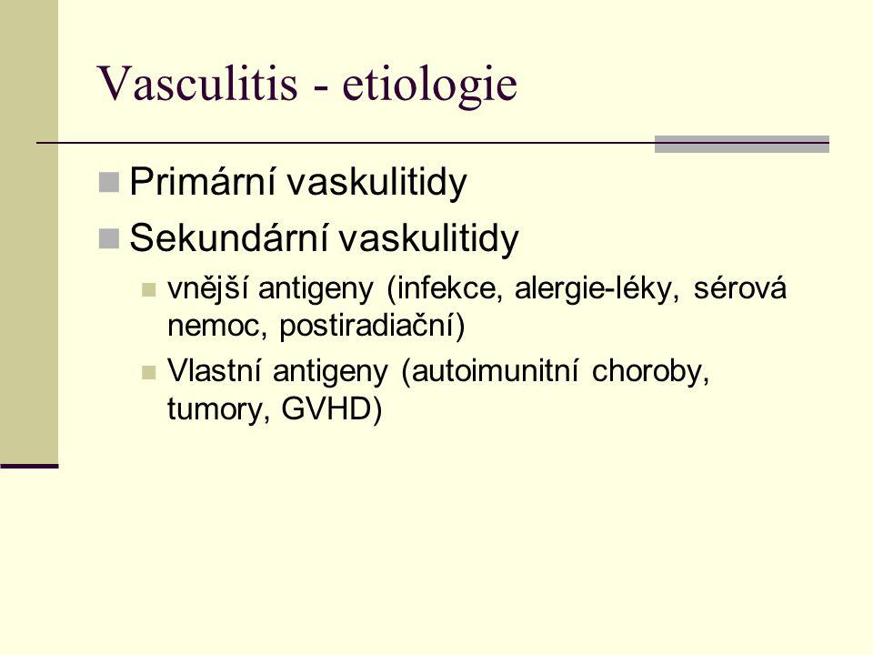 Vasculitis - etiologie