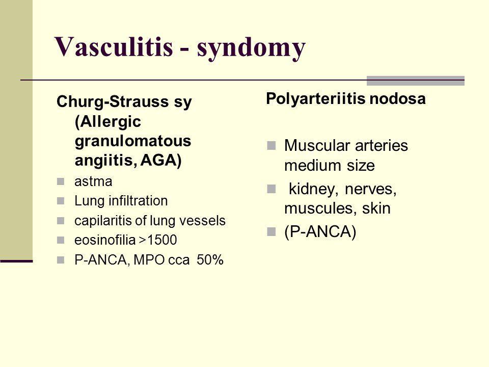 Vasculitis - syndomy Polyarteriitis nodosa