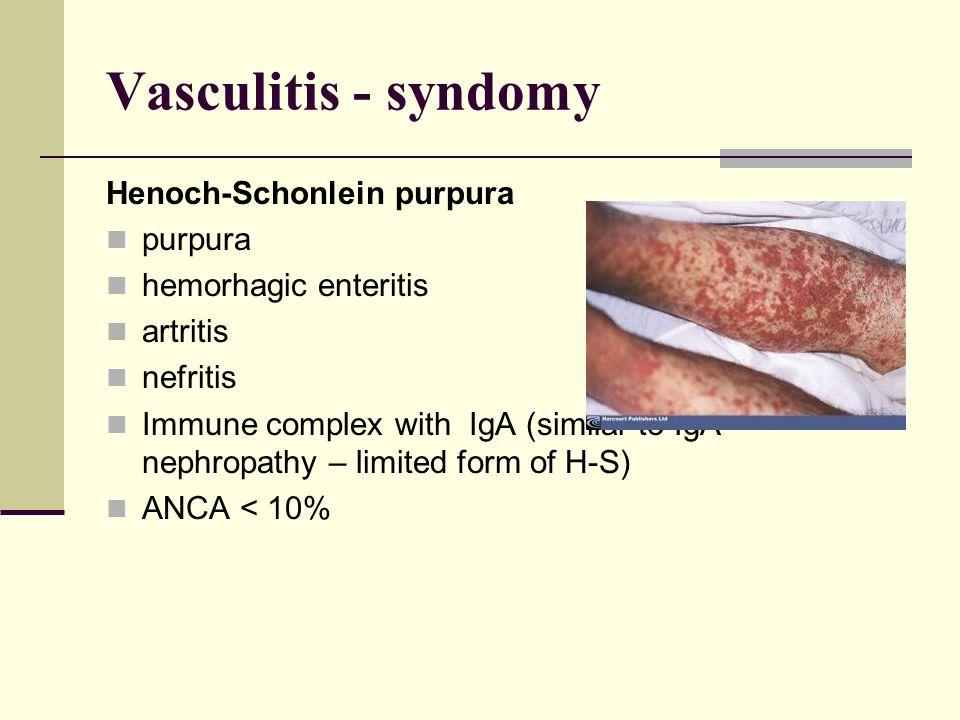 Vasculitis - syndomy Henoch-Schonlein purpura purpura