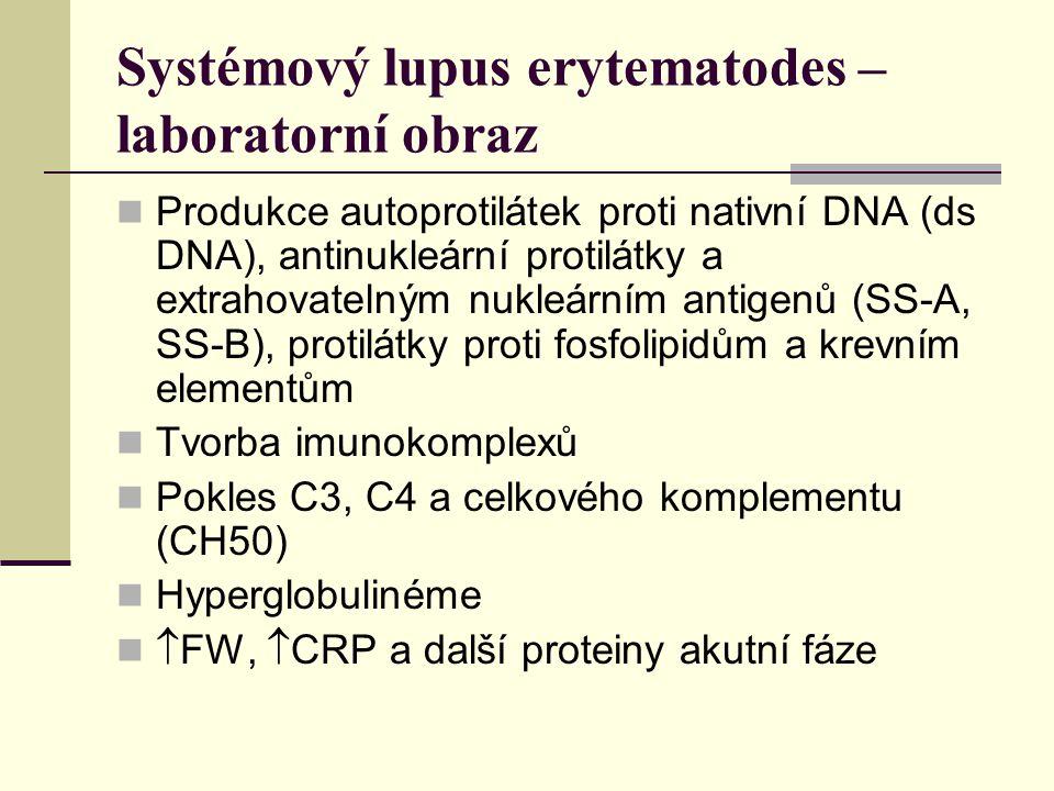 Systémový lupus erytematodes – laboratorní obraz