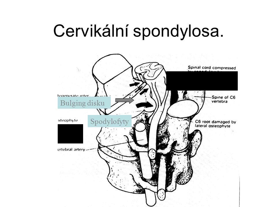 Cervikální spondylosa.