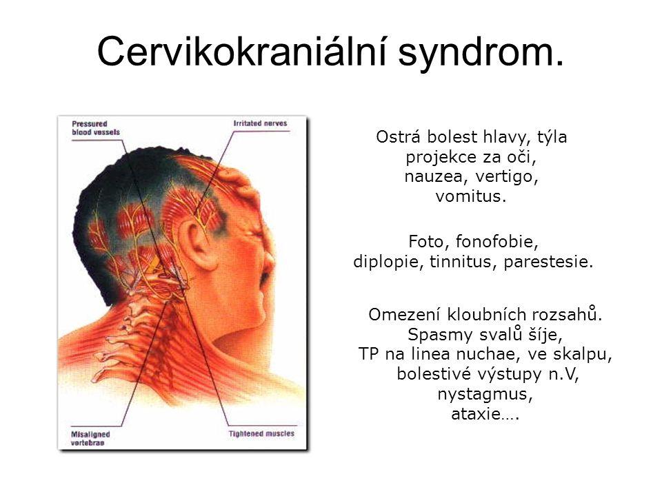 Cervikokraniální syndrom.