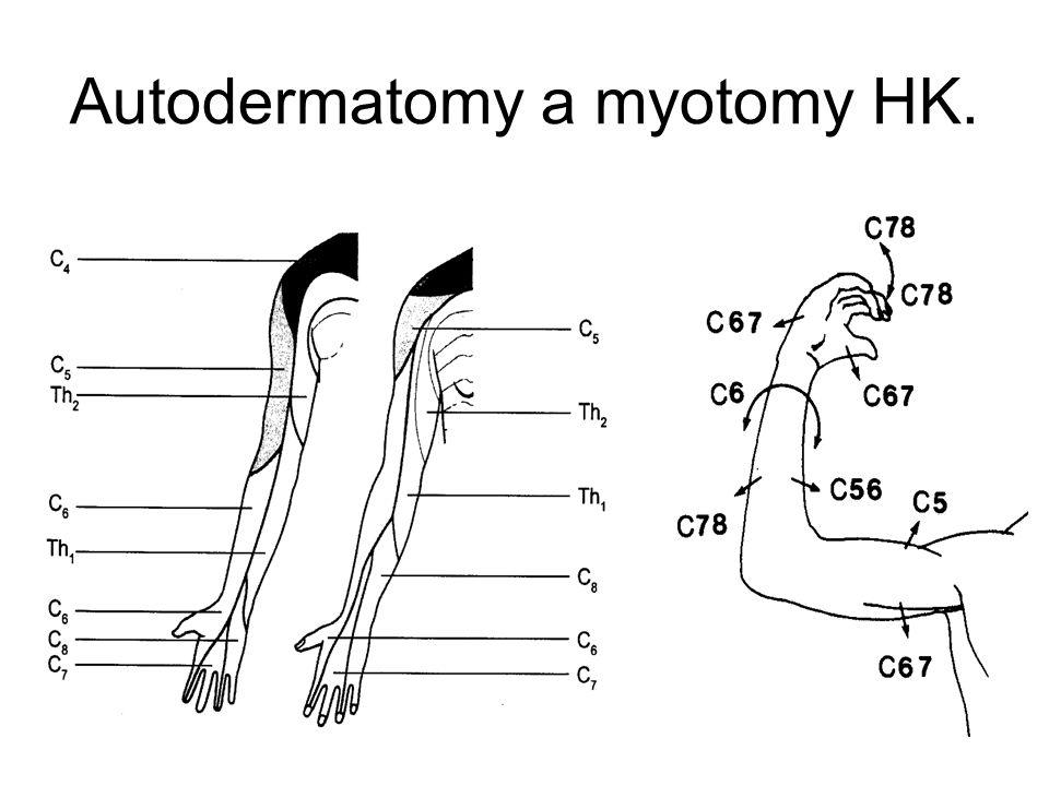 Autodermatomy a myotomy HK.