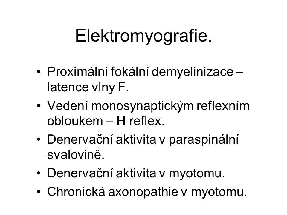 Elektromyografie. Proximální fokální demyelinizace – latence vlny F.