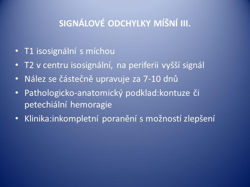 SIGNÁLOVÉ ODCHYLKY MÍŠNÍ III.