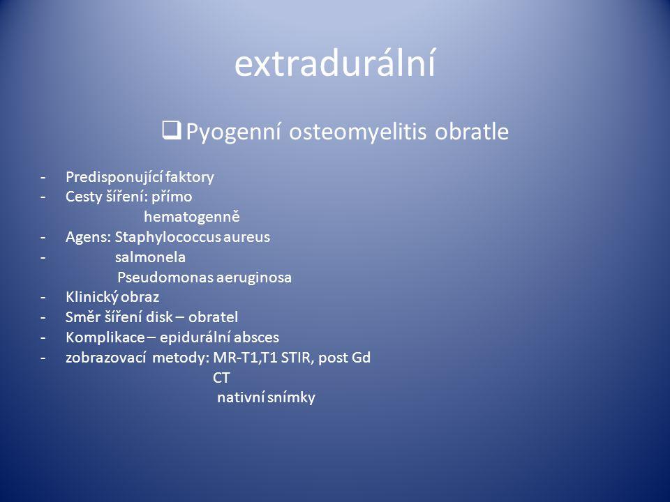 Pyogenní osteomyelitis obratle