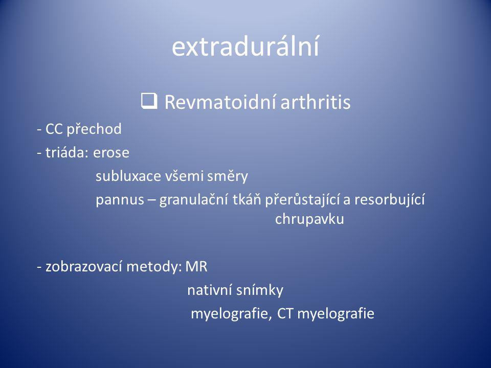 Revmatoidní arthritis