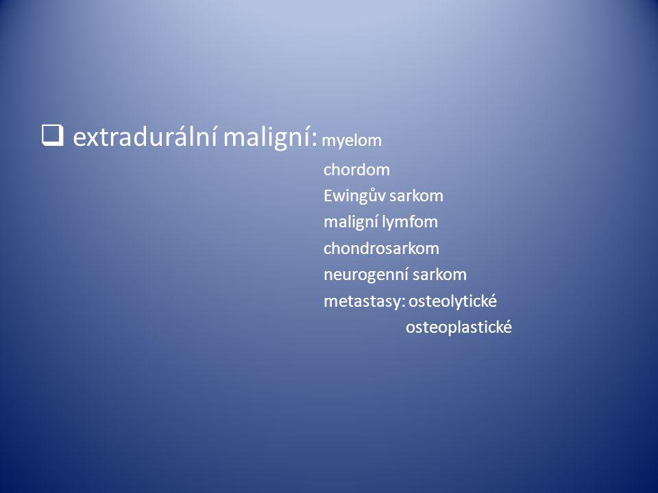 extradurální maligní: myelom