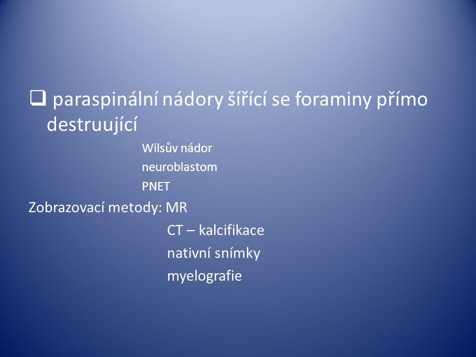 paraspinální nádory šířící se foraminy přímo destruující