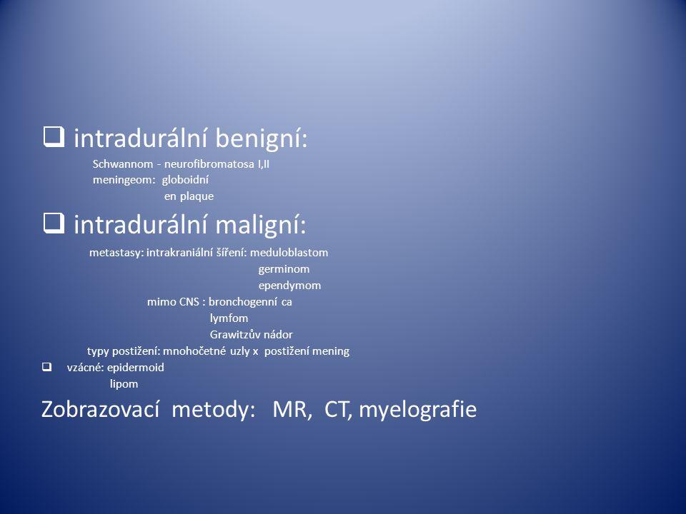 intradurální benigní: intradurální maligní: