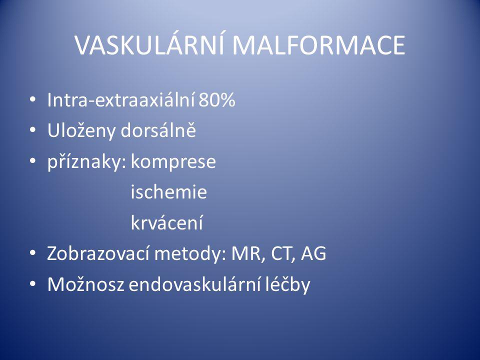 VASKULÁRNÍ MALFORMACE