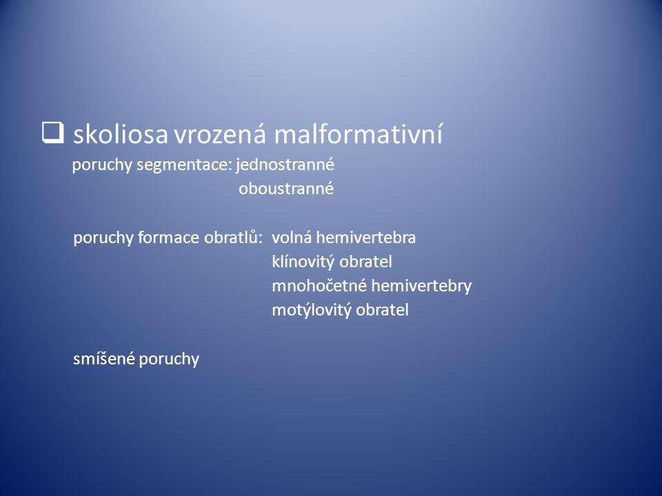 skoliosa vrozená malformativní