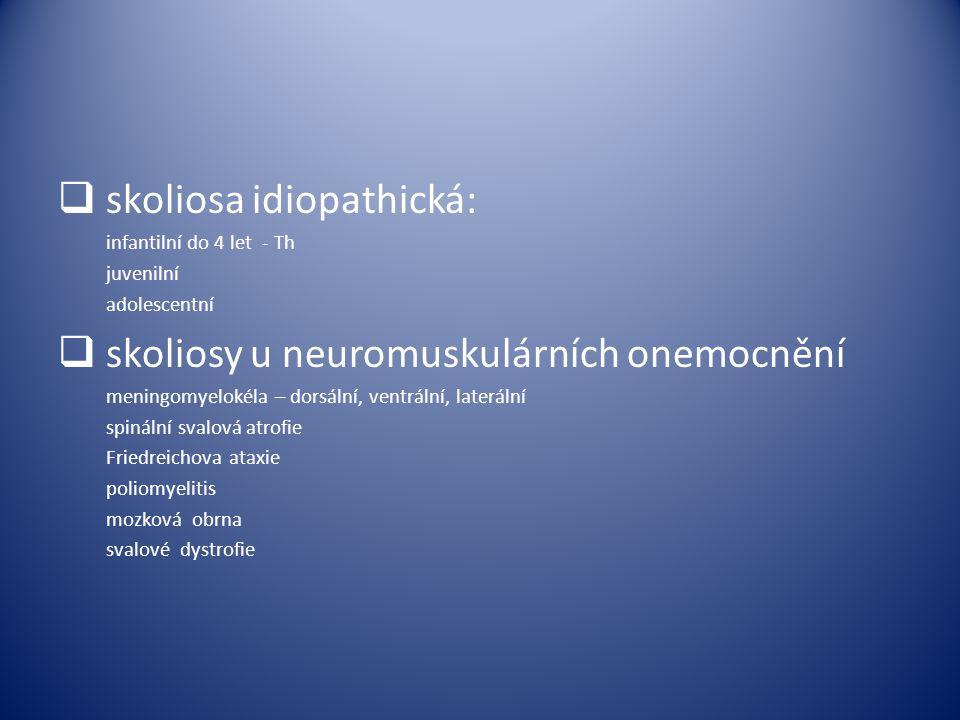 skoliosa idiopathická:
