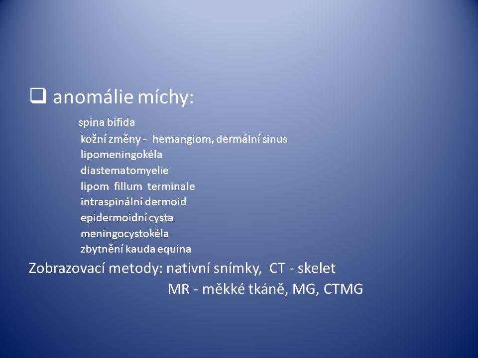 anomálie míchy: spina bifida