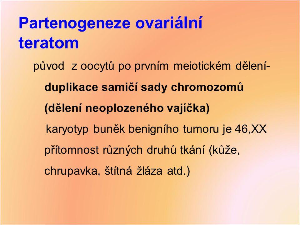 Partenogeneze ovariální teratom