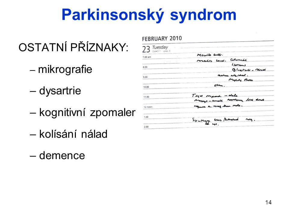 Parkinsonský syndrom OSTATNÍ PŘÍZNAKY: dysartrie kognitivní zpomalení