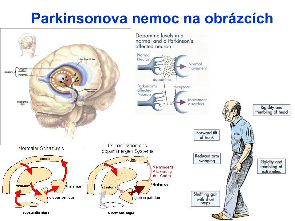 Parkinsonova nemoc na obrázcích