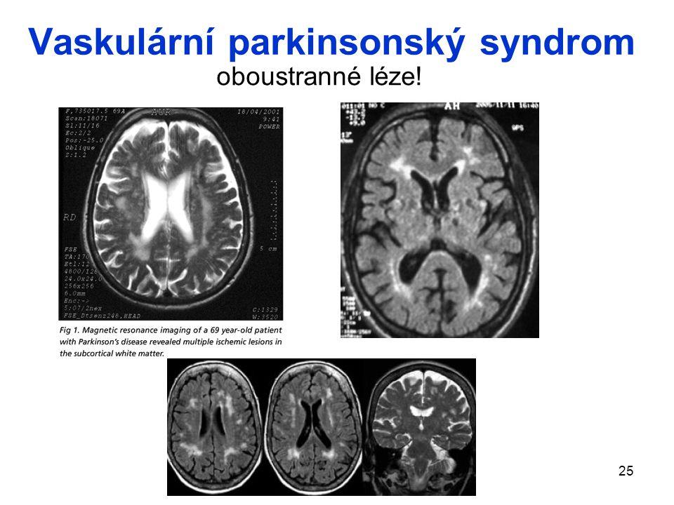 Vaskulární parkinsonský syndrom