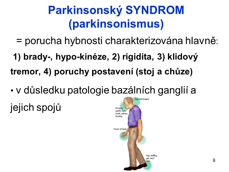 Parkinsonský SYNDROM (parkinsonismus)