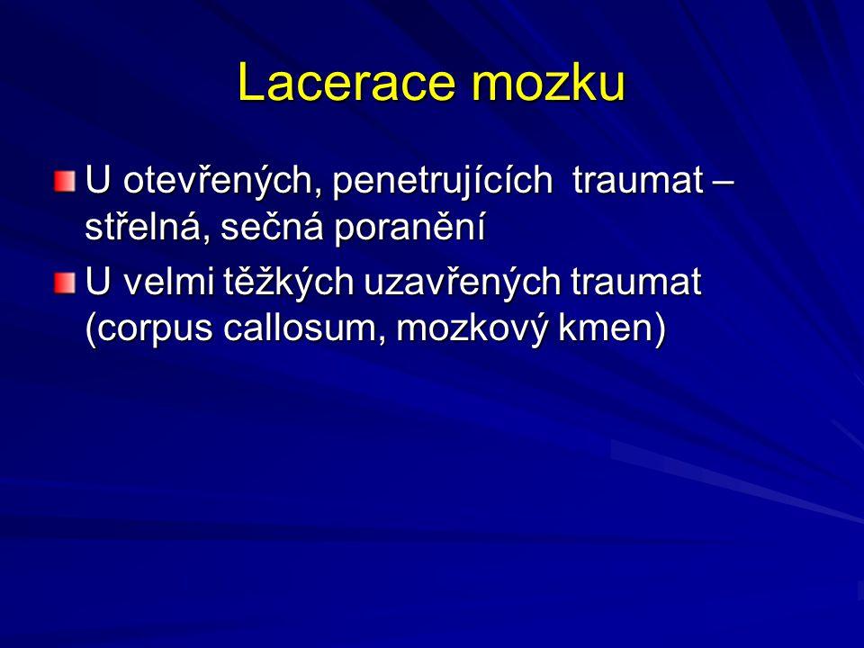 Lacerace mozku U otevřených, penetrujících traumat – střelná, sečná poranění.