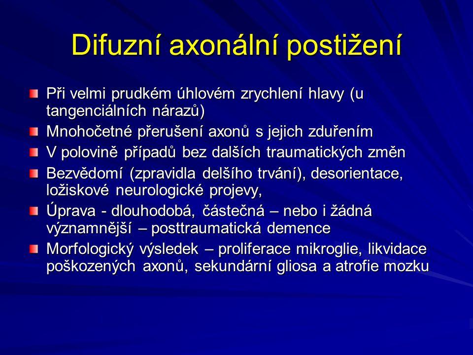 Difuzní axonální postižení