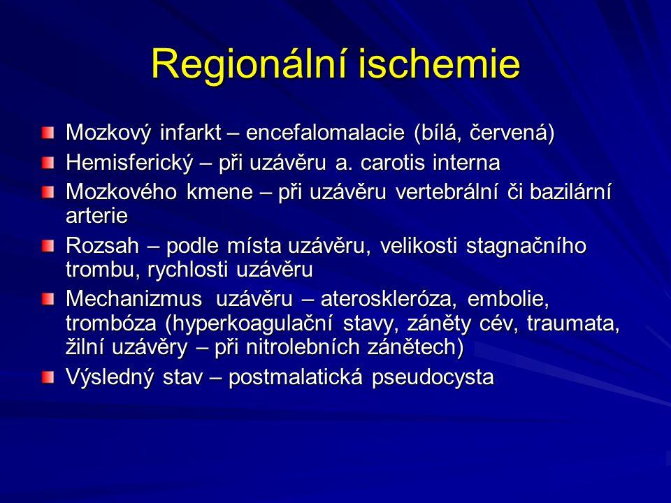 Regionální ischemie Mozkový infarkt – encefalomalacie (bílá, červená)