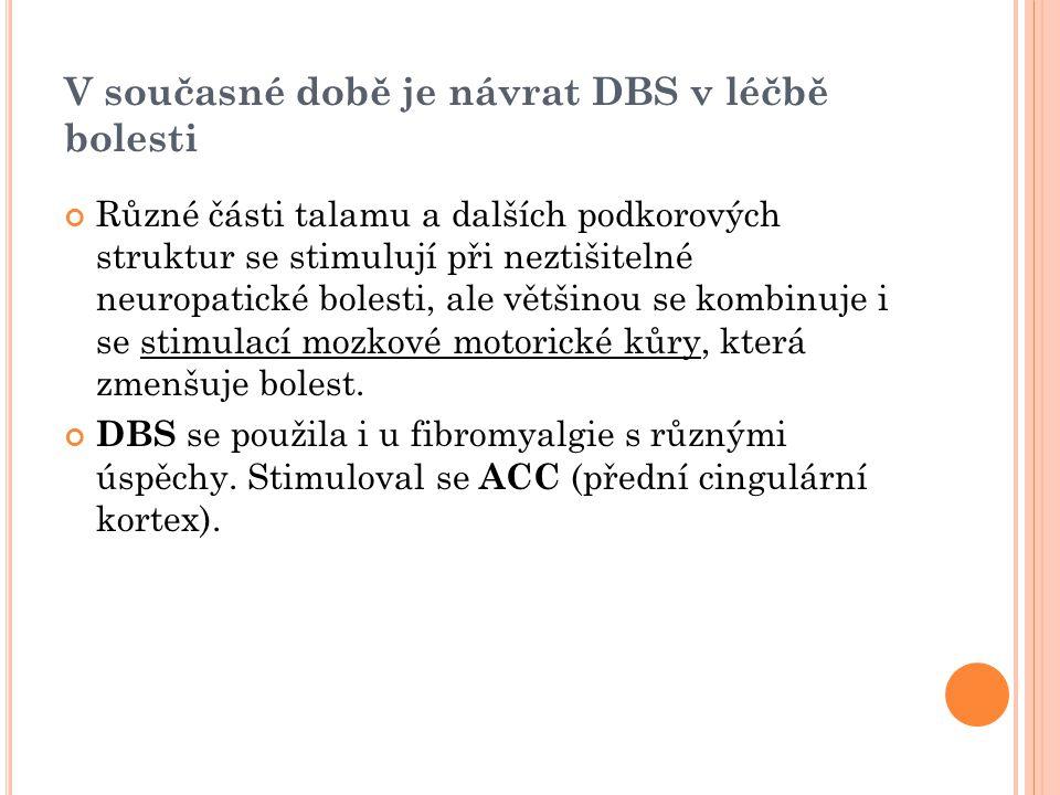 V současné době je návrat DBS v léčbě bolesti