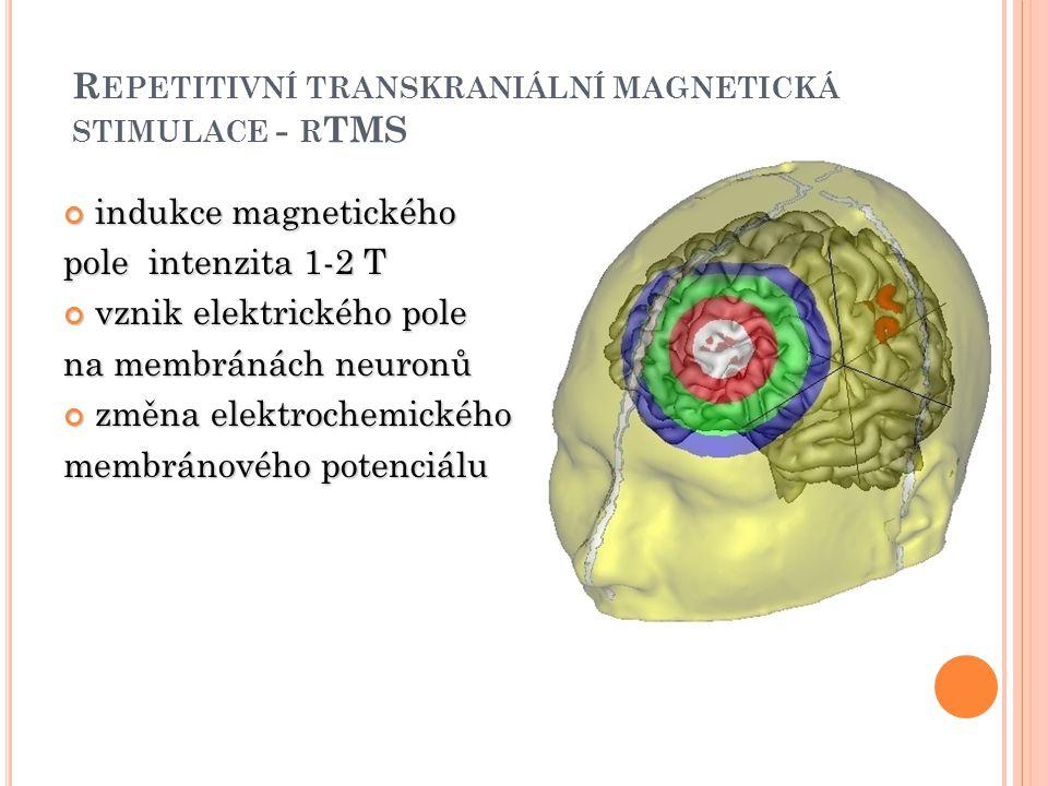 Repetitivní transkraniální magnetická stimulace - rTMS