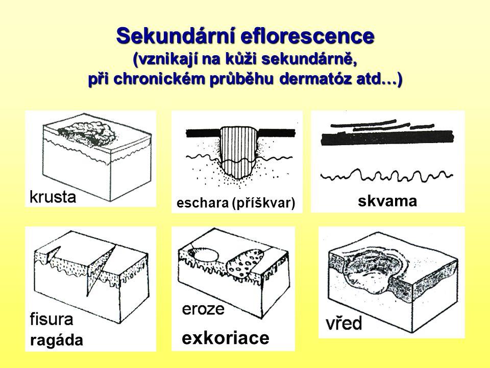 Sekundární eflorescence (vznikají na kůži sekundárně, při chronickém průběhu dermatóz atd…)