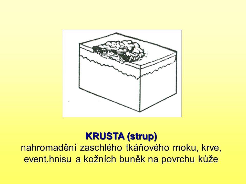 KRUSTA (strup) nahromadění zaschlého tkáňového moku, krve, event