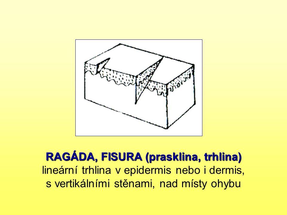 RAGÁDA, FISURA (prasklina, trhlina) lineární trhlina v epidermis nebo i dermis, s vertikálními stěnami, nad místy ohybu