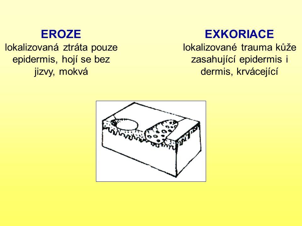 EROZE lokalizovaná ztráta pouze epidermis, hojí se bez jizvy, mokvá