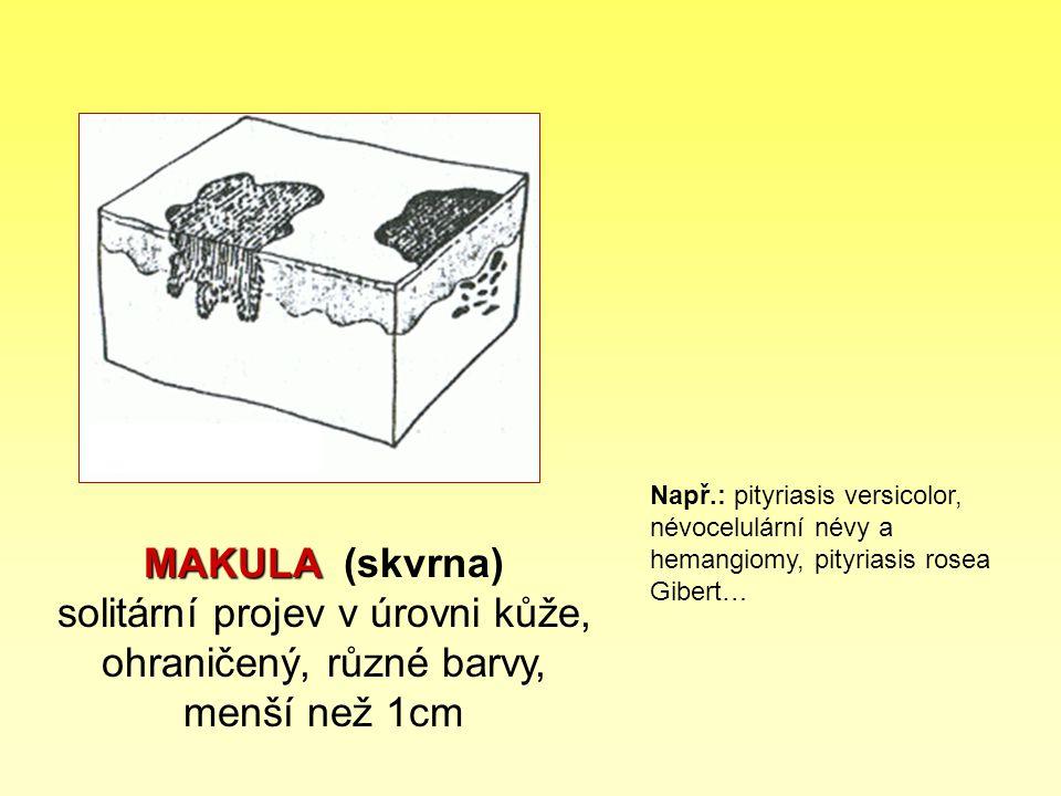 Např.: pityriasis versicolor, névocelulární névy a hemangiomy, pityriasis rosea Gibert…
