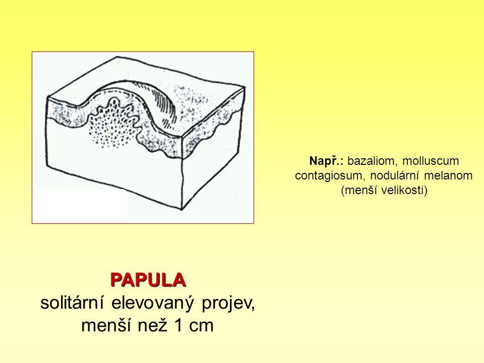 PAPULA solitární elevovaný projev, menší než 1 cm