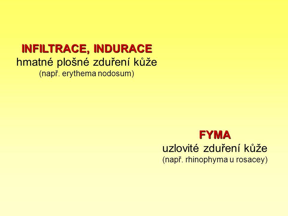 FYMA uzlovité zduření kůže (např. rhinophyma u rosacey)