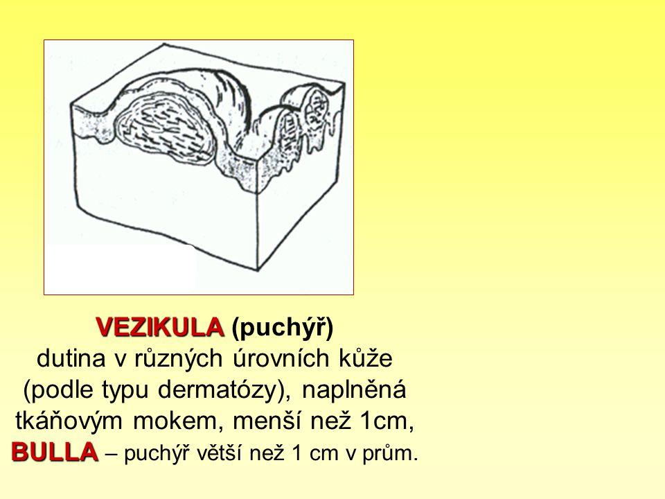 VEZIKULA (puchýř) dutina v různých úrovních kůže (podle typu dermatózy), naplněná tkáňovým mokem, menší než 1cm, BULLA – puchýř větší než 1 cm v prům.