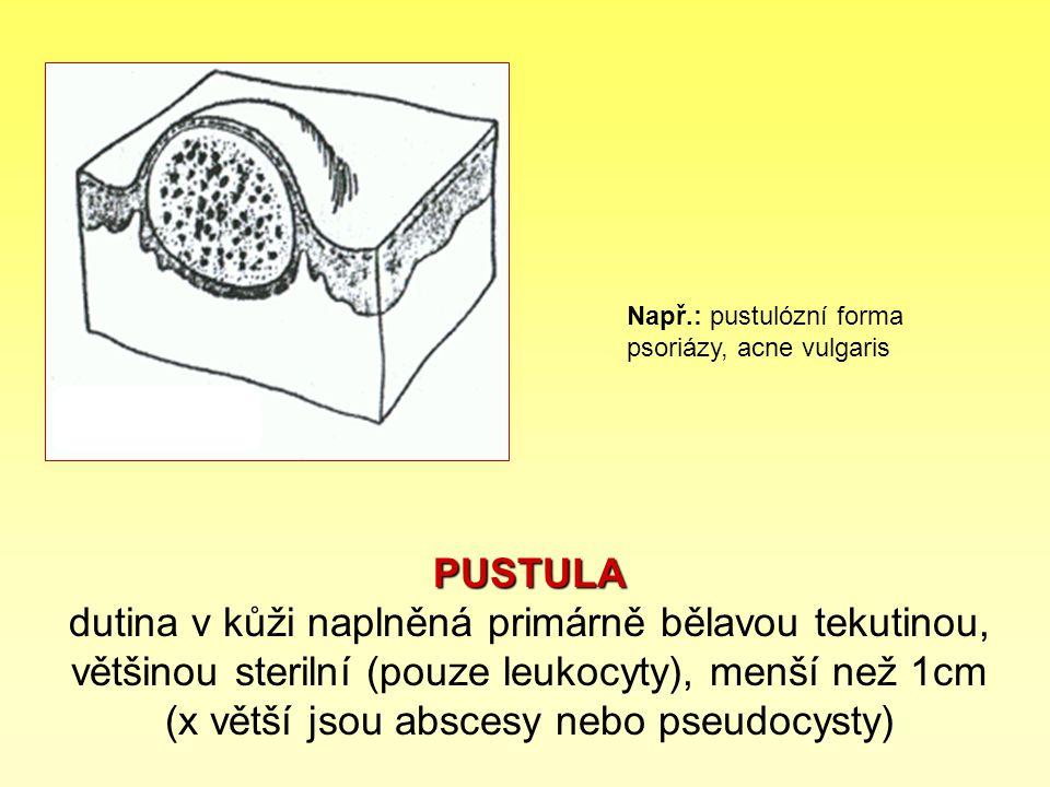 Např.: pustulózní forma psoriázy, acne vulgaris