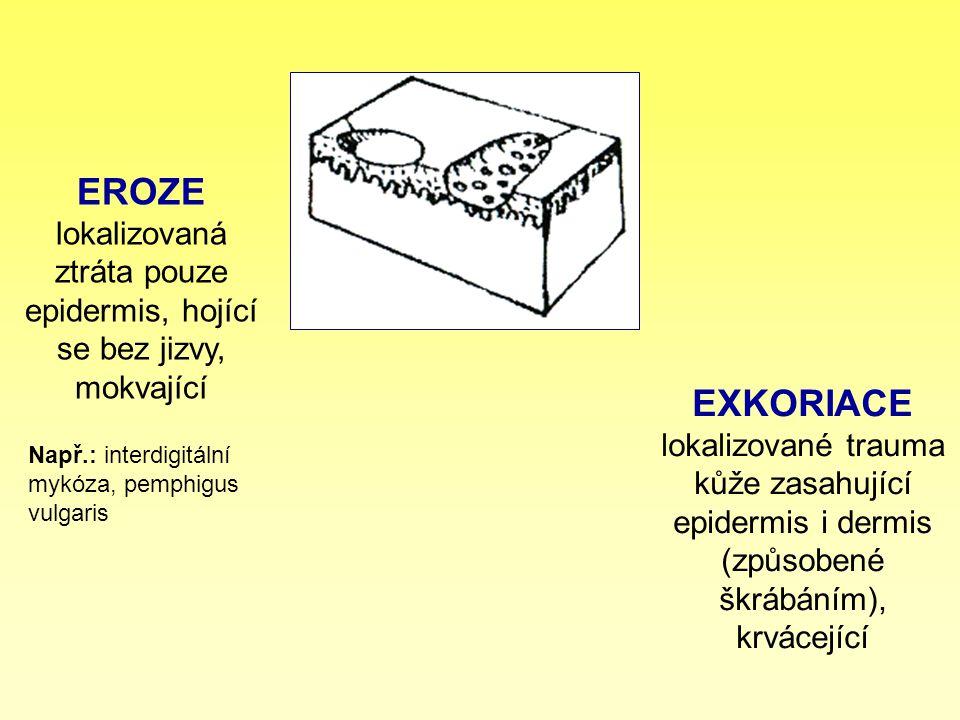 EROZE lokalizovaná ztráta pouze epidermis, hojící se bez jizvy, mokvající