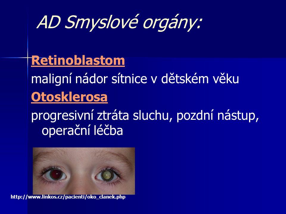 AD Smyslové orgány: Retinoblastom maligní nádor sítnice v dětském věku