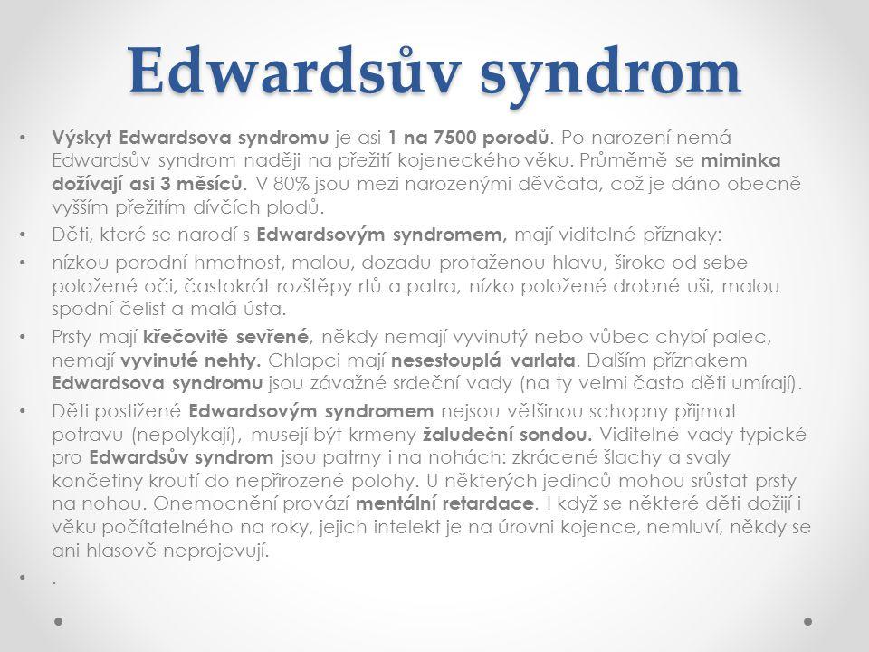 Edwardsův syndrom