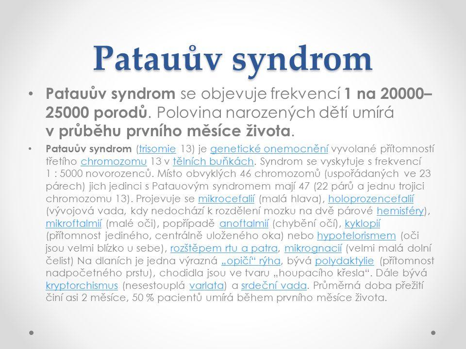 Patauův syndrom Patauův syndrom se objevuje frekvencí 1 na 20000–25000 porodů. Polovina narozených dětí umírá v průběhu prvního měsíce života.