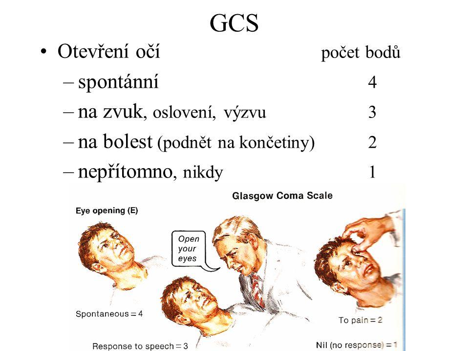 GCS Otevření očí počet bodů spontánní 4 na zvuk, oslovení, výzvu 3