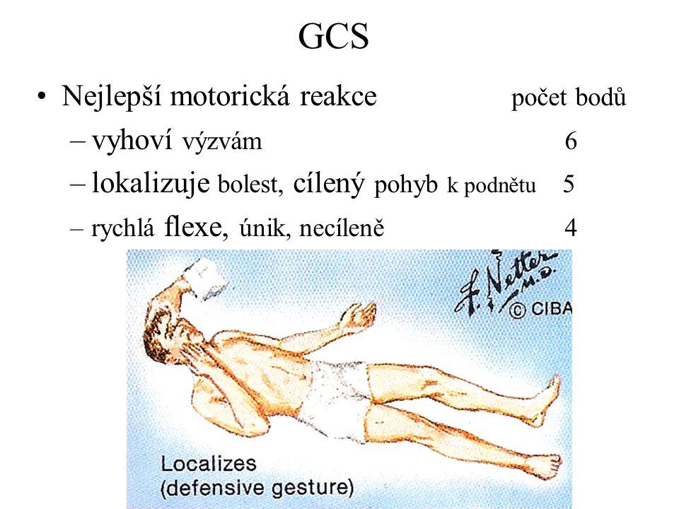 GCS Nejlepší motorická reakce počet bodů vyhoví výzvám 6
