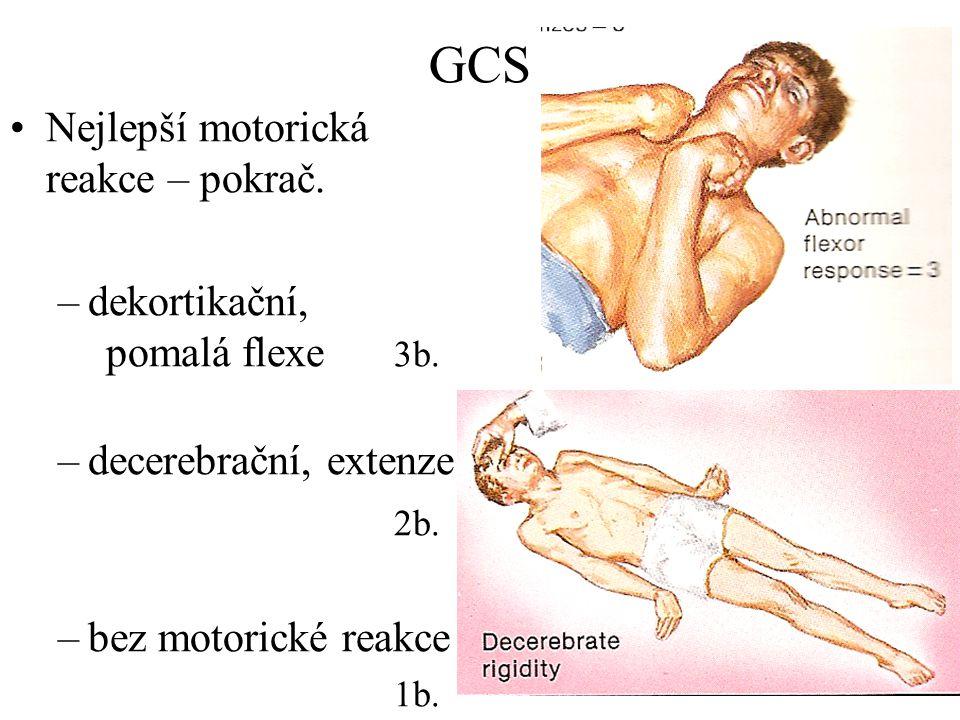 GCS Nejlepší motorická reakce – pokrač. dekortikační, pomalá flexe 3b.