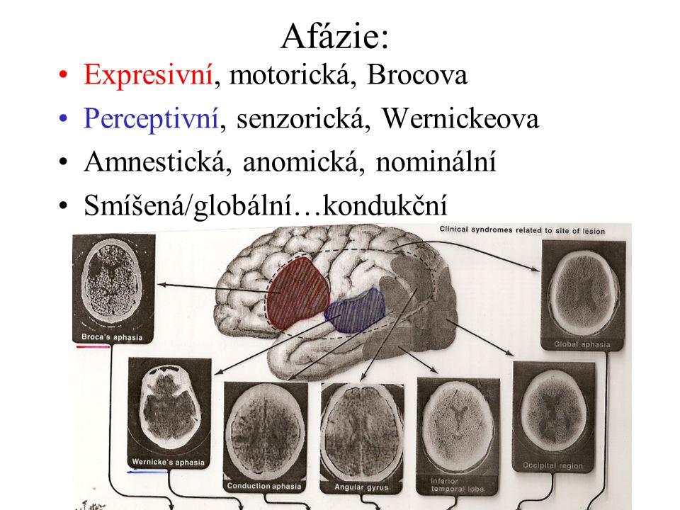 Afázie: Expresivní, motorická, Brocova