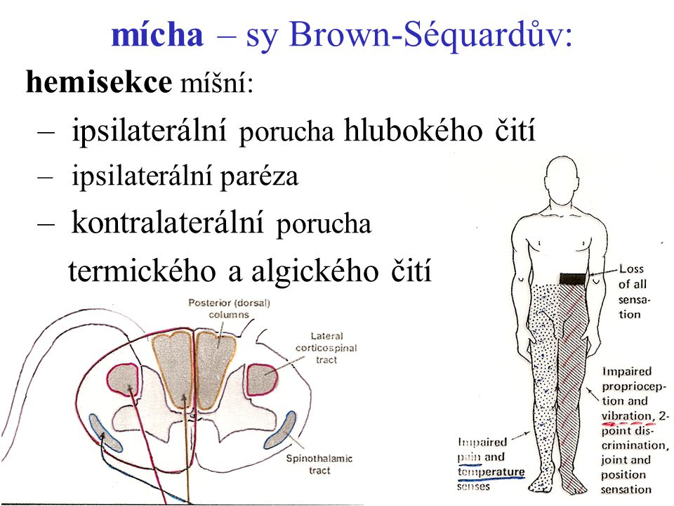 mícha – sy Brown-Séquardův: