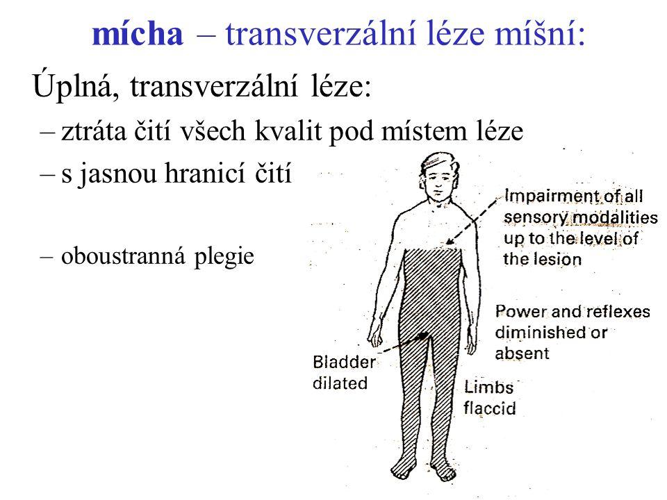 mícha – transverzální léze míšní: