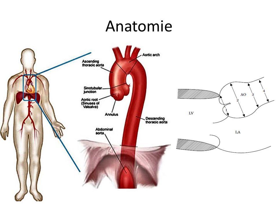 Schön Anatomie Des Bogens Der Aorta Zeitgenössisch - Anatomie Ideen ...