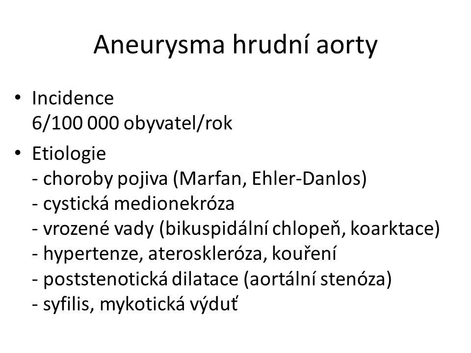 Aneurysma hrudní aorty